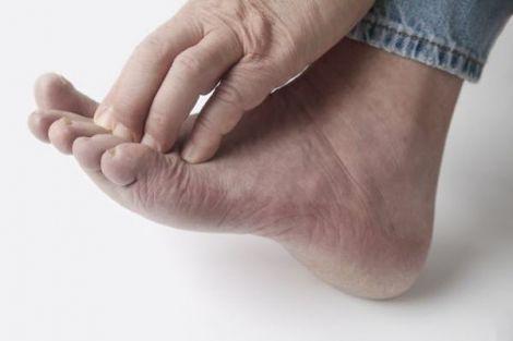 Лікування грибкової інфекції на ногах