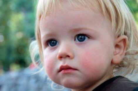 Діатез у дитини: перші симптоми