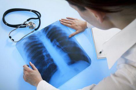 Названо головні ознаки розвитку раку легенів