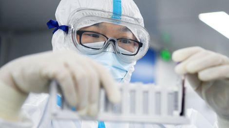 Искусственная вентиляция легких и коронавирус: важные факты