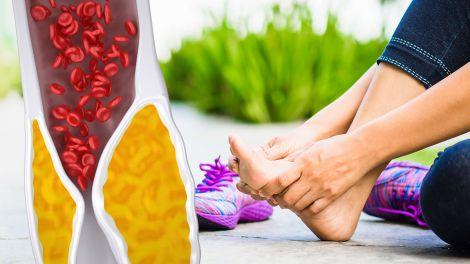 Високий холестерин: чотири ознаки в ногах вкажуть на небезпечний стан