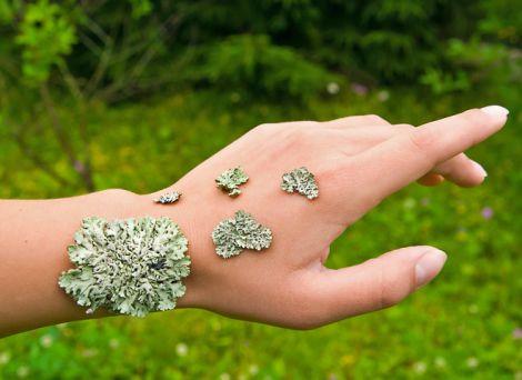 Як лікувати екзему натуральними засобами?