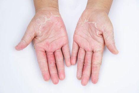 Методи лікування екземи та дерматиту