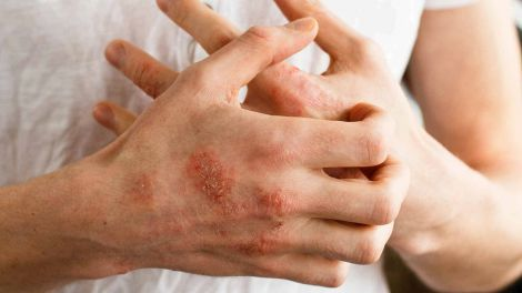 Лікування дерматиту та екземи