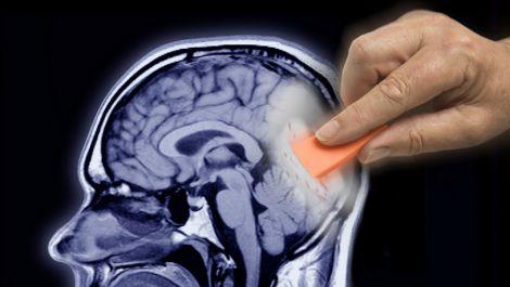 Спогади у мозку зберігаються після смерті