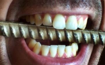 звичку скрипіти зубами легко побороти