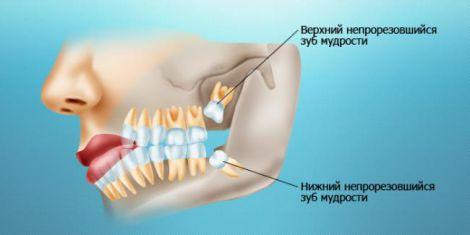 2175_prorezivanie-zuba-mudrosti.jpg (12.55 Kb)