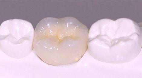 Металлокерамика - современный материал для протезирования зубов
