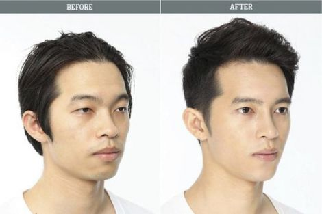 before_and_after_photos_of_korean_plastic_surgery_007.jpg (18.41 Kb)