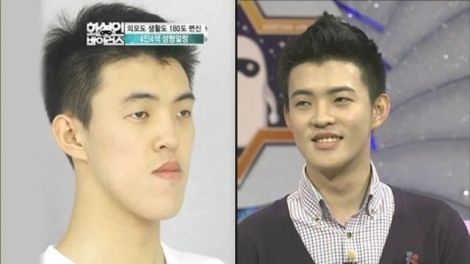 before_and_after_photos_of_korean_plastic_surgery_008.jpg (18.14 Kb)