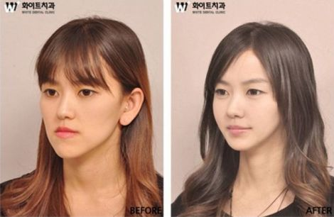 before_and_after_photos_of_korean_plastic_surgery_009.jpg (22.43 Kb)