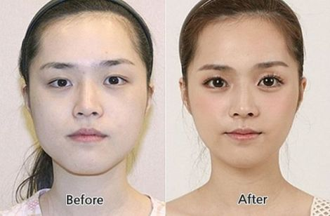 before_and_after_photos_of_korean_plastic_surgery_024.jpg (21.78 Kb)