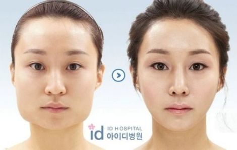 before_and_after_photos_of_korean_plastic_surgery_025.jpg (17.85 Kb)