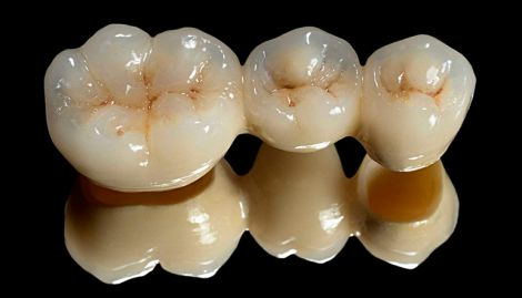 bezmetallovaya-keramika-2.jpg (15.93 Kb)