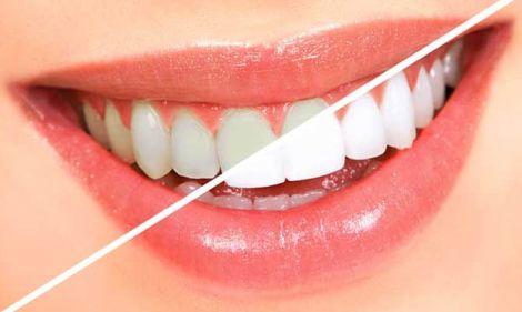 ftorirovanie-zubov.jpg (17.93 Kb)