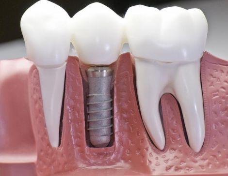 osnovnye-vidy-implantacii-zubov_2.jpg (21.79 Kb)
